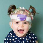 pediatric KidCap cranial orthosis infant plagiocephaly helmet image