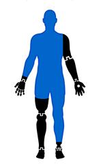 infinite technologies prosthetics prostheses