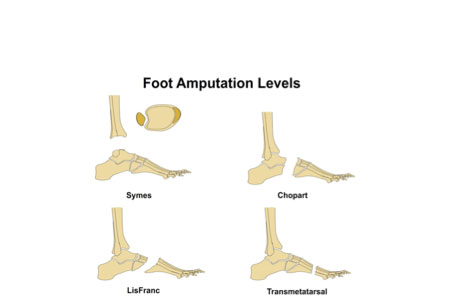 foot amputation levels