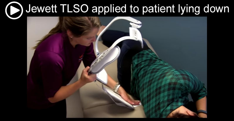 Jewett TLSO applied to patient lying down v2