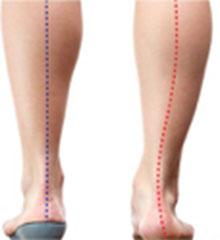 Foot Inserts Orthoses Diabetic Orthopedic Infinite Technologies Orthotics